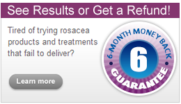 rosadyn treatment for rosacea 6 month guarantee