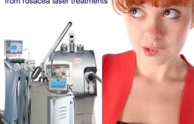 10 tips on how to get better laser treatment for rosacea results.