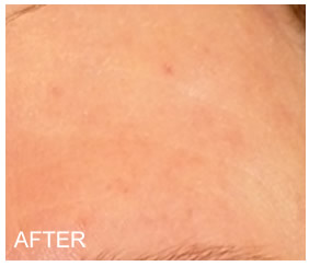 6 months after using Rosadyn natural rosacea treatment monthly, reduction in rosacea symptoms