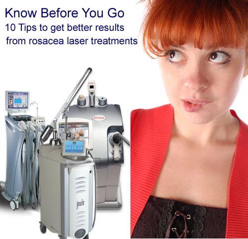 10 Tips To Get Better Rosacea Laser Treatment Results