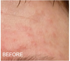 Rosacea redness and bumps on forehead prior to using Rosadyn for rosacea