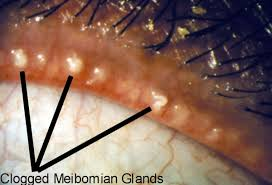 Clogged Meibomian Glands with Swollen Eyelids